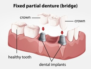 denatl implants and bridges Parnell Auckland
