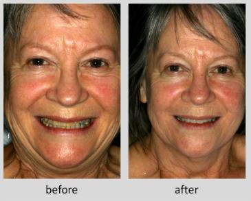 Parnell Dentistry smile makeover