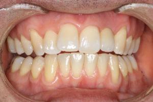 implant K after teeth 768