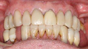 02 TB. 9th Nov 2015 004 teeth