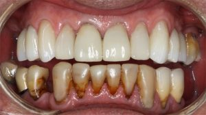 03 TB 3 Aug 2016 002 teeth