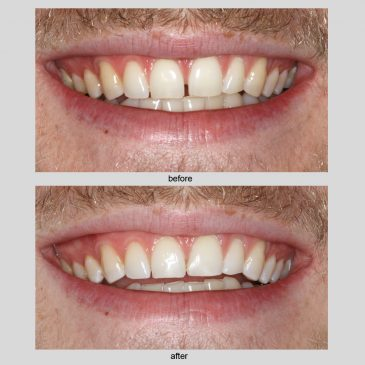 Want to improve your smile?