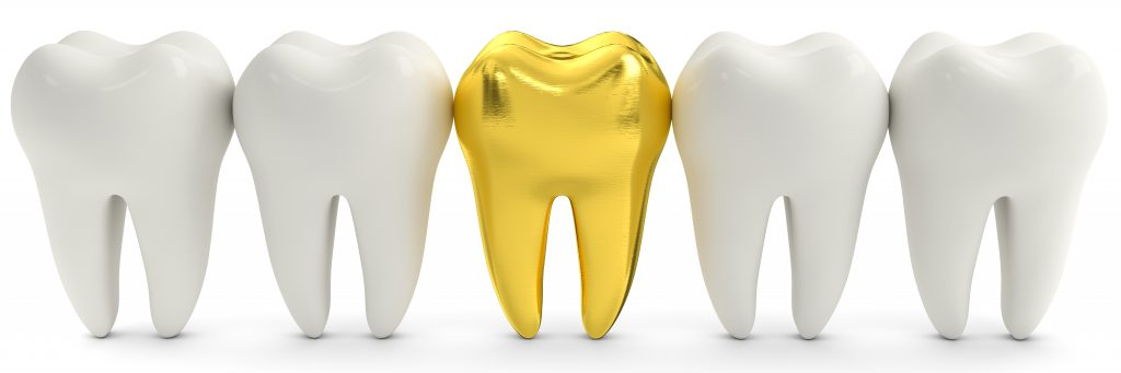 Golden Tooth Crown